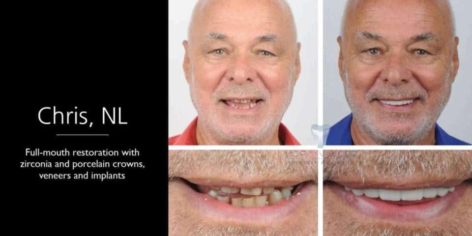 advanced dentistry uvita dentistry