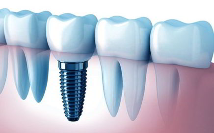 gums diseases enfermedad periodental encias periodontal