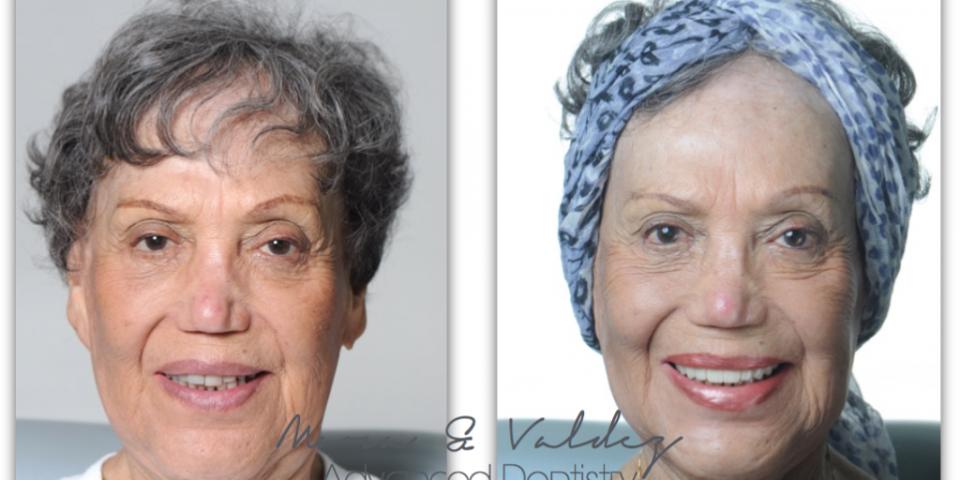 Advanced dentistry, antes y después